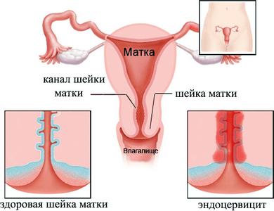 Цервицит и эндоцервицит шейки матки