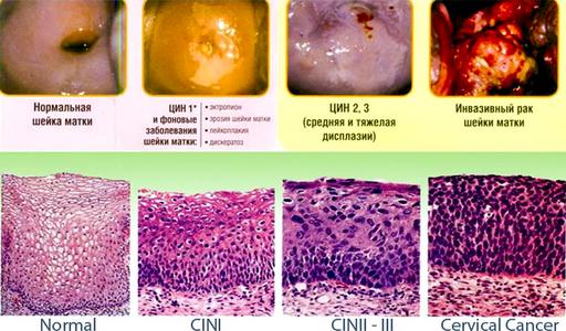 Дисплазия шейки матки 1-2-3 степени
