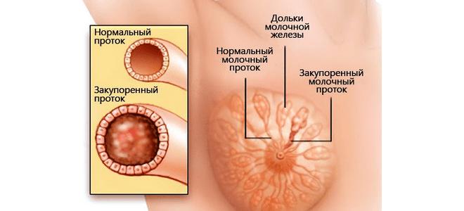 Расширение протоков молочной железы
