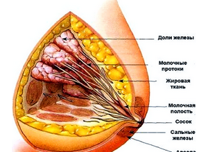 Аденоз молочных желез: симптомы, лечение, профилактика