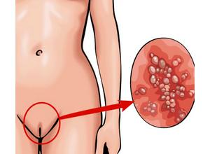 Генитальные инфекции у женщин