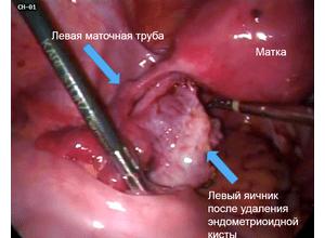 Эндометриоидные
