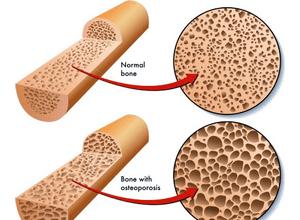 Нарушение костной ткани у женщин
