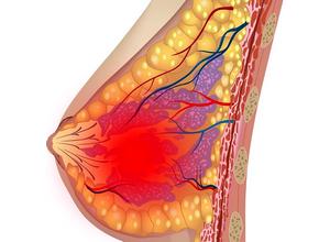 Боль в груди при климаксе - норма или патология