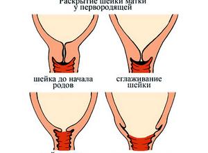 Раскрытие шейки матки перед родами