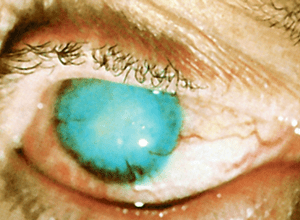 разрушиться нос сифилис