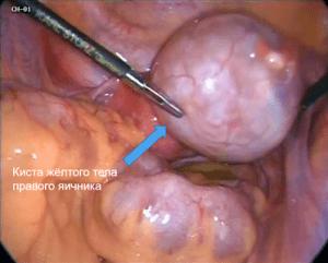 Киста жёлтого тела яичника: симптомы и лечение