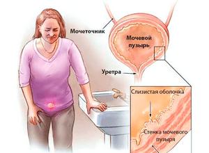 Наличие инфекции в мочеполовой системе