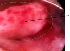 воспаление слизистой матки