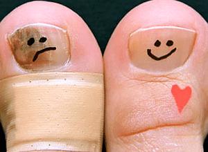 появляться грибки на ногтевых пластинках
