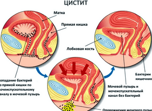 цистита чаще становятся условно-патогенные микроорганизмы