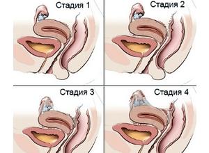 Эндометриоз бывает генитальным