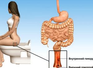 Индометацин свечи инструкция по применению в гинекологии