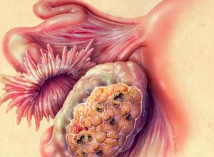 Суппозитории при воспалении женских органов