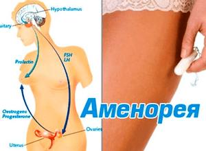 Аменорея