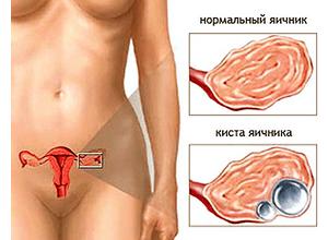 Чем опасна киста на яичнике у беременной женщины 87