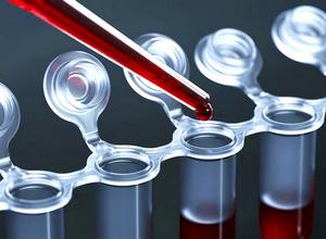 Анализ крови на уровень ХГЧ