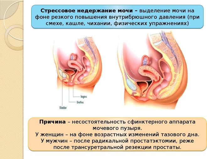 эктопия