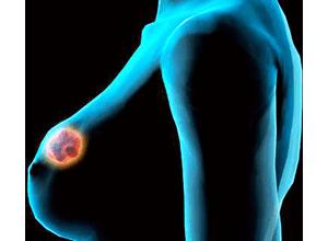 Листовидная фиброаденома