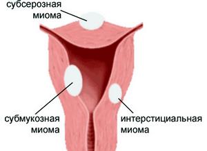 Фіброма матки - що це за захворювання » журнал здоров'я iHealth 2