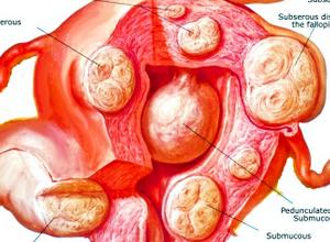 Фіброма матки - що це за захворювання » журнал здоров'я iHealth