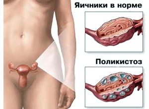 гормональный фон