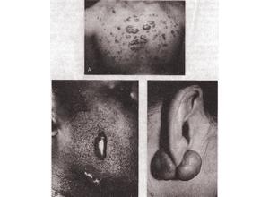 Фиброматоз