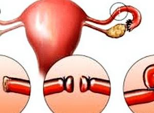 Фаллопиева труба