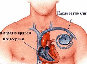 ритме работы сердца