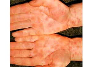 признаки бытового сифилиса