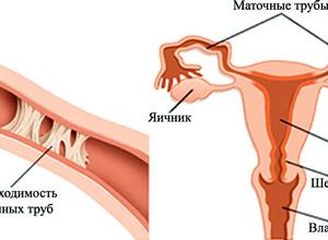 Непроходимость в маточных трубах