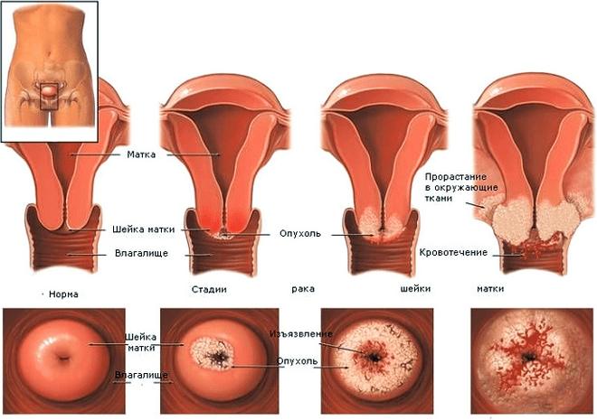 онкология женских половых органов