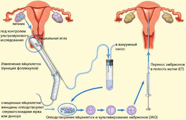 резекция яичников