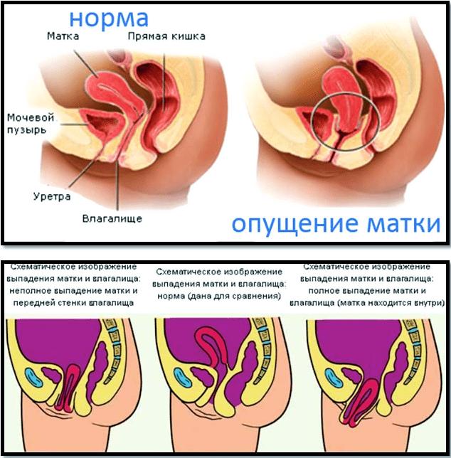 Опущення матки: симптоми і лікування