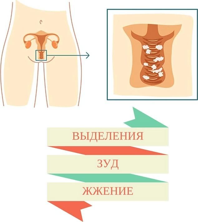 воспаление слизистой влагалища