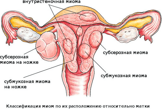 воспалительные процессы в матке