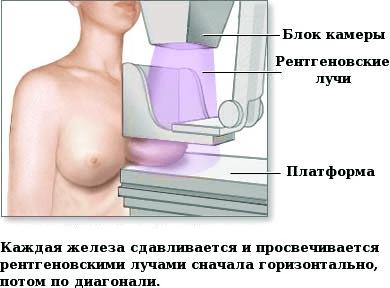 маммографию