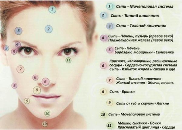 высыпания на коже лица у женщин