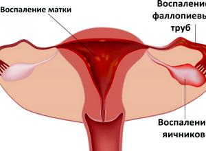 воспалительных процессах в яичниках