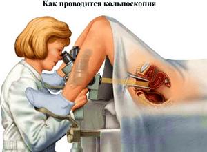 Осмотр у гинекологичному кресли фото фото 437-106