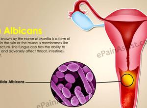 Тетраборат натрия при молочнице во рту
