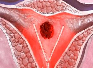 раковые заболевания половых органов
