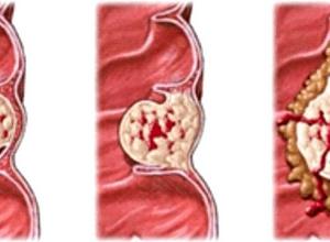 Высокодифференцированная аденокарцинома эндометрия: стадии и лечение