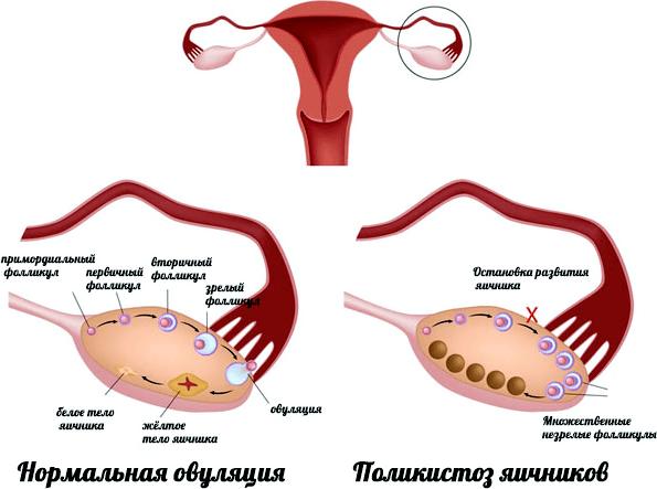 Що входить в органи малого тазу у жінок