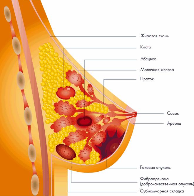 кисты в молочных железах