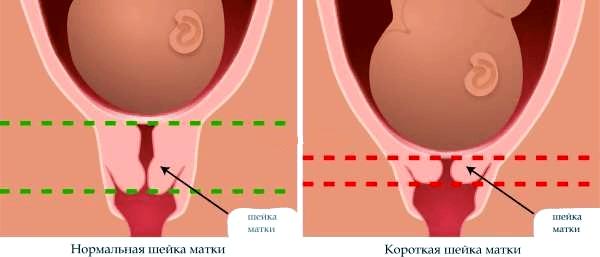 Как ставят кольцо на шейку матки при беременности