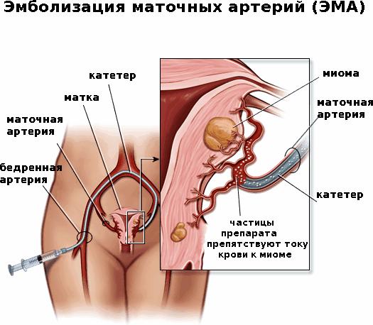 эмболизация маточной артерии