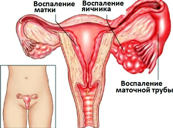 повреждение сосудов эндометрия