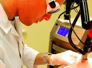 лечение атеромы с помощью лазера