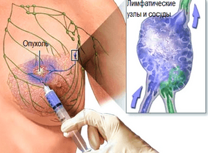 аспирационная биопсия молочных желез